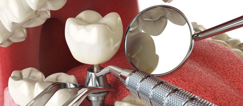 Cat-dureaza-un-implant-dentar2-825x360