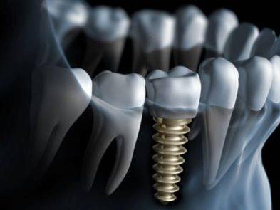 3-motive-pentru-care-nu-trebuie-sa-fii-stresat-cu-privire-la-implatul-dentar-min-393x295